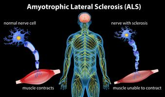 Anatomie der Amyotrophen Lateralsklerose vektor