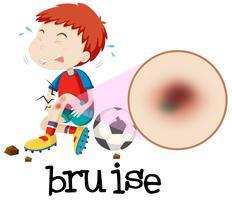 En ung pojke Habing Bruise