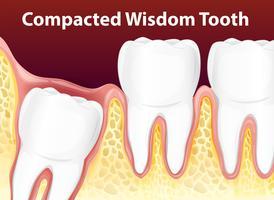 Verdichtetes Weisheitsdiagramm-Zahn