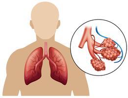 Diagramm einer vergrößerten Lunge
