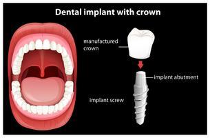 Medicinsk vektor av tandimplantat