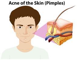 En ung man med pimple på ansikte