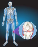 Menschlicher Körper und Schmerzen im Knie