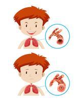 Pojkar med friska och ohälsosamma lungor vektor