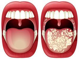 Vektor des gesunden und Virus-Mundes