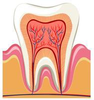 Innen auf einem einzigen Zahn
