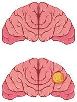 Mänsklig hjärna med cancer vektor