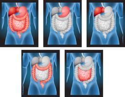 Röntgenfilme von menschlichen Organen