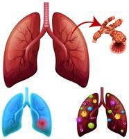 Eine Reihe von Lungenerkrankungen