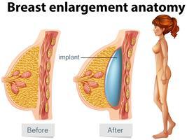 En mänsklig anatomi av bröstimplantat