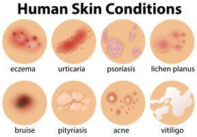 En uppsättning mänskliga hudförhållanden
