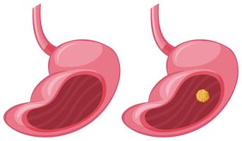 Menschlicher Magen und Krebs vektor