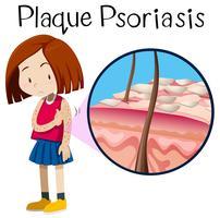 Ein Vektor der Mädchen-Plakette-Psoriasis
