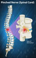 Diagramm des eingeklemmten Nervs am Rückenmark
