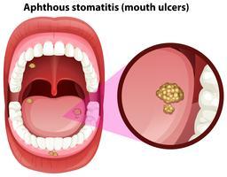 Anatomie des menschlichen Mundes bei Geschwüren