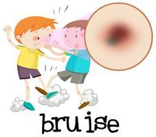 Pojkar slåss och ha bruise