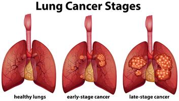 Diagram som visar lungcancerstadier