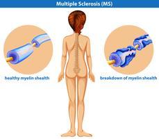 En medicinsk vektor av multipel skleros