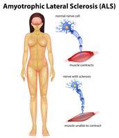 Weibliche Amyotrophe Lateralsklerose vektor