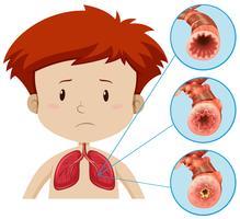 En mänsklig anatomi av lungproblem