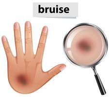 Ett mänskligt hand med blåmärken