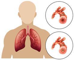 Mänsklig kronisk obstruktiv lungsjukdom