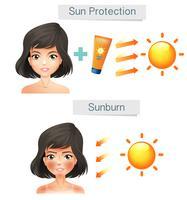 Vektor, der Frauen-Haut nach Sun zeigt