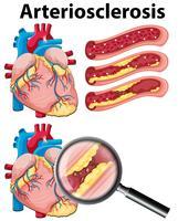 En hjärta med arterioskleros på vit bakgrund