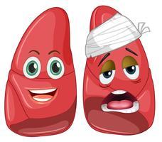 Hälsosam och skadad lunga