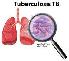 Mänsklig lunga med tuberkulos vektor
