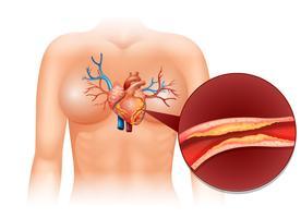Herz Cholesteral beim Menschen vektor