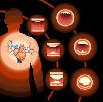 Hjärtkolesterol i människokroppen vektor
