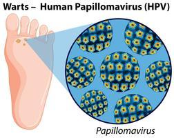 Diagramm, das menschliches Papillomavirus zeigt