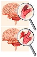 Mänsklig hjärna och hemorragisk stroke