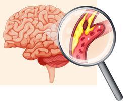 Mänsklig hjärna med åderförkalkning vektor
