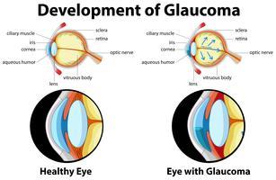 Das Diagramm zeigt die Entwicklung des Glaukoms vektor