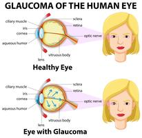 Glaukom des menschlichen Auges vektor