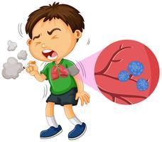 Lungcancer och liten pojke rökning vektor