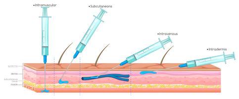 Diagramm, das die Injektion mit der Spritze zeigt
