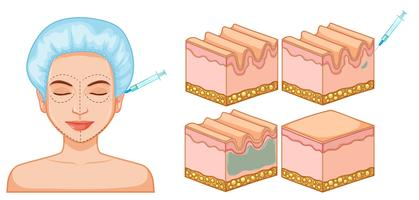 Lady Gesicht und Haut Botox vektor