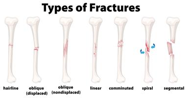 Eine Reihe von Knochenbrüchen vektor