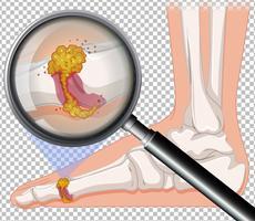 närbild av infektion till fots vektor