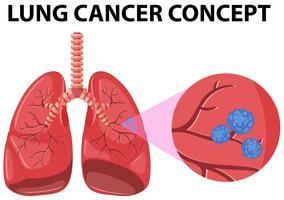 Diagram av lungcancerkoncept