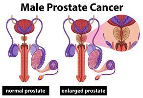 Prostatakrebs beim Menschen vektor