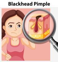 Ung kvinna med blackhead pimple