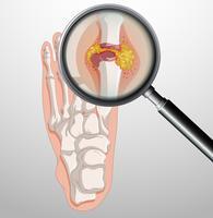 Menschliche Füße mit Gicht vektor