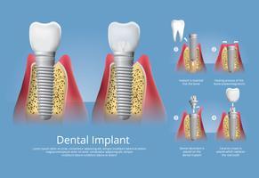 Mänskliga tänder och Dentalimplantat Vektorillustration