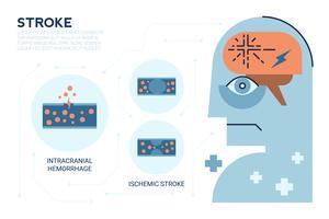 Stroke Brainsjukdom