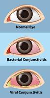 Verschiedene Stadien der Bindehautentzündung im menschlichen Auge