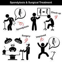 Spondylose und Spondylolisthesis und chirurgisches Behandlungspiktogramm (Alter Mann leidet an Kreuzschmerzen (Lendenschmerzen), er wurde untersucht und operiert, die Wirbelsäule wurde intern durch Platte und Schraube fixiert) vektor